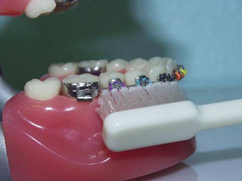 Memilih Sikat Gigi Behel Dan Cara Menyikatnya Orange Dental