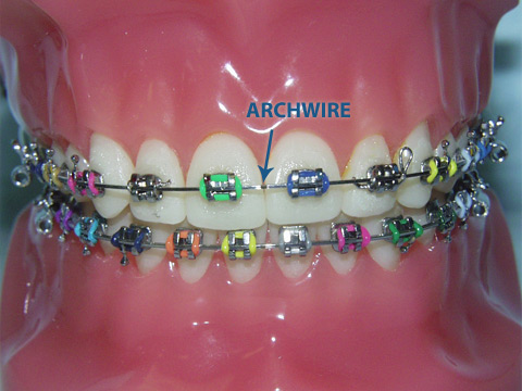 Glossary Kifer Dental Specialist Dr Denise Doan Dds